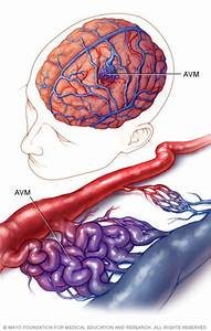 Brain Avm  Arteriovenous Malformation  Disease Reference