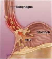 Gastroesophageal Reflux Disease (GERD) What is GERD? GERD