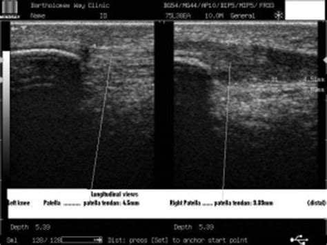 knee pain ultrasound imaging sussex physio