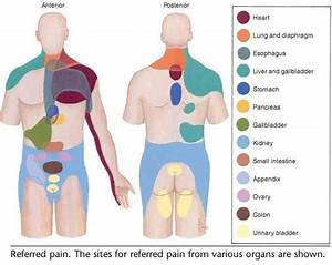 Lumbar Facet Pain Diagram