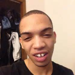 Icejjfish On The Floor by The Gap In His Teeth Really Ties The Ugly Of His Face