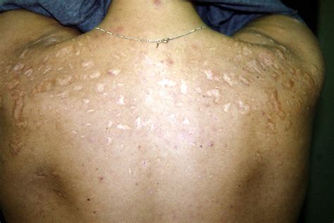 hypertrophic acne scar pictures