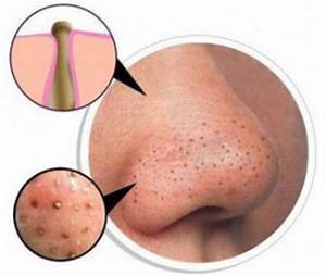Hydrogen Peroxide to Remove Blackheads