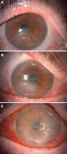 Neurotrophic Keratitis  Current Challenges And Future