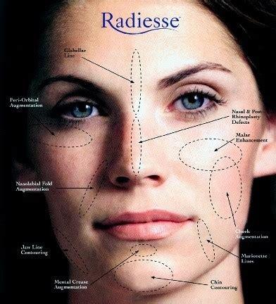 develop high cheekbones    face quora