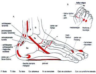 Pijnlijke spieren en pezen