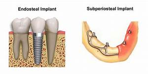 Dental Implants in Costa Rica   Check Out Our Top Pick
