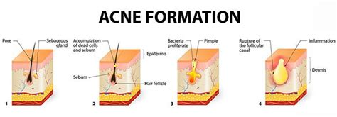 how to get rid of acne natural acne treatment products
