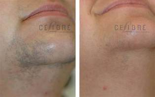 Laser Hair Removal Estimates by Laser Hair Removal Before And After Pictures 5