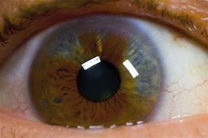 heterochromia iridis 1 by gwegowee on DeviantArt