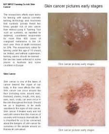 Skin Cancer Advices - Skin Cancer Advices Skin Cancer
