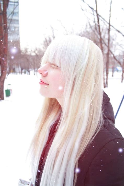 17 Best Images About Albino Is Beautiful On Pinterest