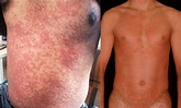 Types of Rash Associated With an HIV Infection