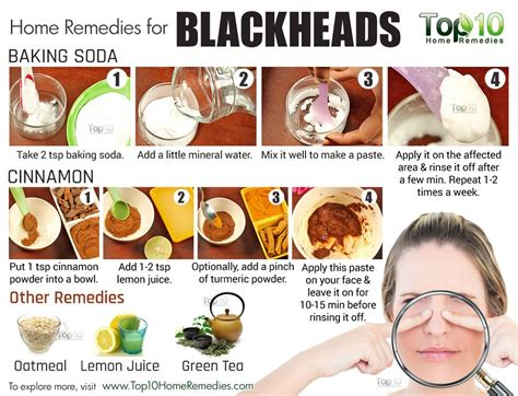Home Remedies To Get Rid Of Blackheads Fast  Top 10 Home