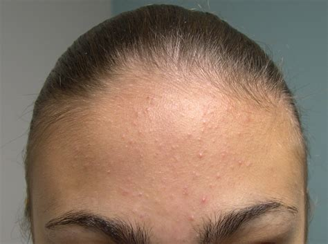 Medical Pictures Info Types Of Acne