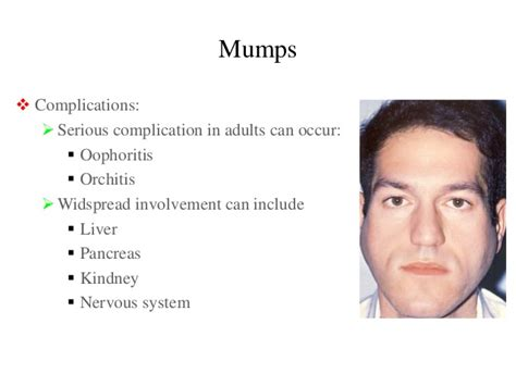 Pictures of People with Mumps