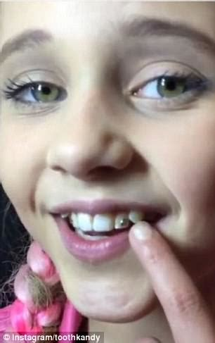 tooth gems   trend  making  comeback