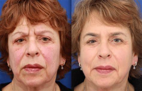 Kosten zuurstofbehandeling gezicht