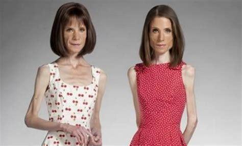 las  historias sobre la anorexia  mas conmocionaron