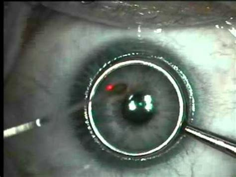 asa prk  lasik eye surgery youtube