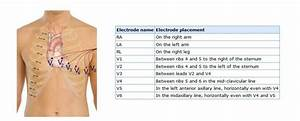 Ecg Placement Of Electrodes  Placement Of The Precordial