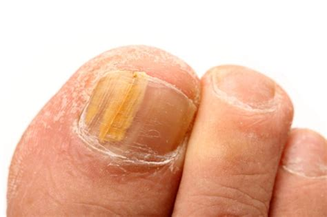 yellow toenails symptoms  treatment pictures