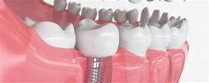 Your Guide To The Different Types Of Dental Implants