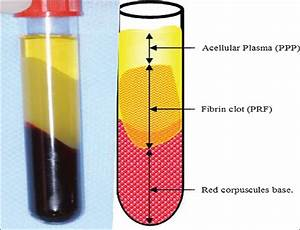 Role of Platelet rich fibrin in wound healing: A critical ...