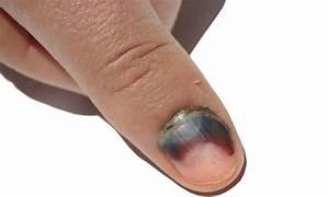 Почему чернеет ноготь на пальце ноги может от диабета