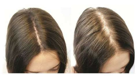 female pattern thinning treatment  women clive hair