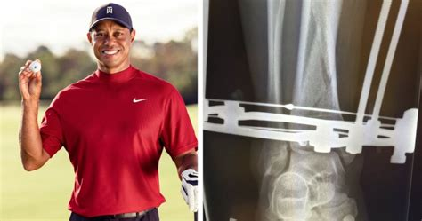 Tiger Wood's is recuperating from a serious car crash ...