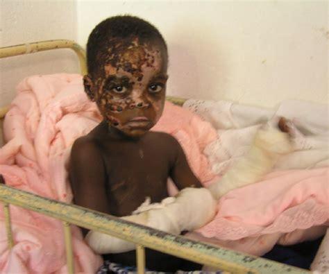 trauma a forgotten priority angola day 8