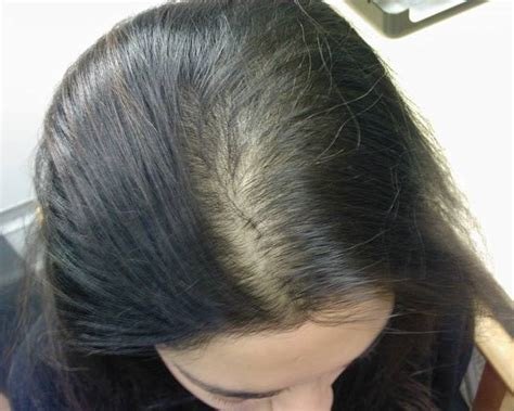 spironolactone hair loss before and alopecia androgenetica bij vrouwen female pattern baldness