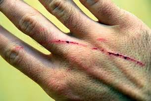 what is cat scratch fever cat scratch fever symptoms about cats
