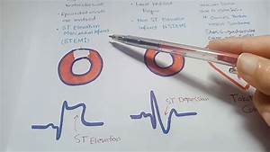 Ischemic Heart Diseases  Angina   Myocardial Infarction