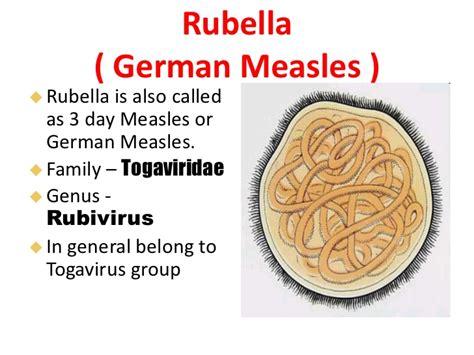 Measles Mumps and Rubella