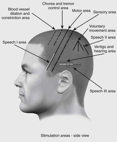 Hair Implants Superior Az 85273 Image Gallery Scalp Regions