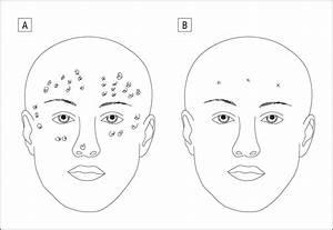 Facial Resurfacing For Nonmelanoma Skin Cancer Prophylaxis