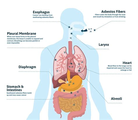 effects of asbestos asbestos exposure occupations products jobsite health