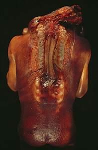 File Spina Bifida Rear Jpg
