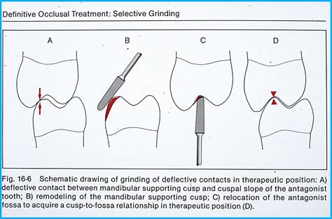 mini hinge for bite adjustment occlusal adjustment spot