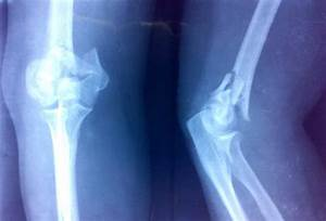 Distal Humerus Fracture   Bone and Spine