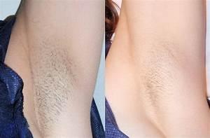 Laser Hair Removal Sudbury | SKIN MediSpa Sudbury Ontario