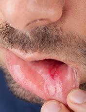 herpes buccal interieur bouche aphtes causes sympt 244 mes traitements creapharma