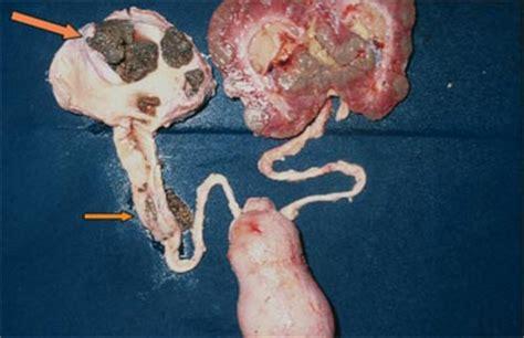 reizung schleimhaut harnröhre
