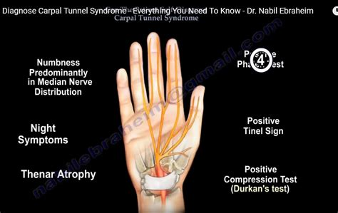 Signs And Symptoms Of Carpal Tunnel Syndrome. World Road Signs Of Stroke. Terrible Signs Of Stroke. Locker Signs Of Stroke. Serial Killer Signs. Parade Signs Of Stroke. Season Signs Of Stroke. Behavioural Signs. Fascism Signs Of Stroke