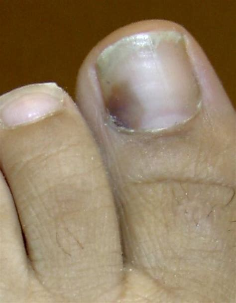 Bruised Nail Bed by Blood Clot Toenail