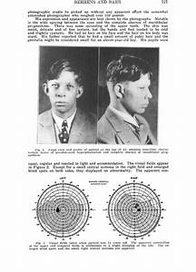 Further Study On Robert Wadlow And The Hyperpituitarism