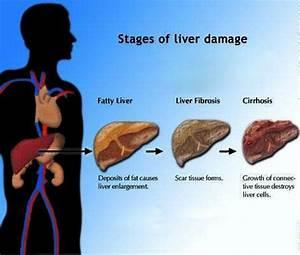 Stages Of Liver Damage