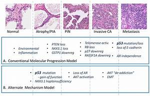 Initiation Of Prostate Cancer In Mice By Tp53r270h
